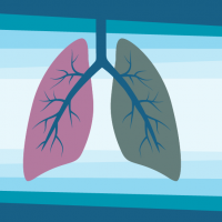 HRAs Build Intrinsic Motivation for Lung Screenings All Year Long