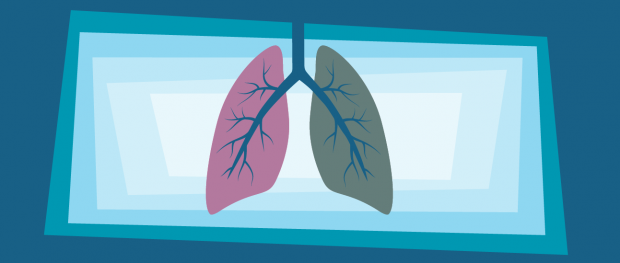 Intrinsic Motivation for Lung Screenings