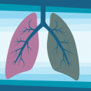 Motivation for Lung Cancer Screenings